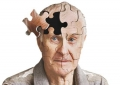 آلزایمر؛ گرانترین مرض دنیاست
